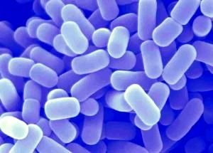 Lactobacillus acidopfilus DDS-1