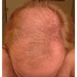 FOLIGAIN MINOXIDIL 5% Tratament pentru regenerarea parului pentru barbati, 3 luni tratament