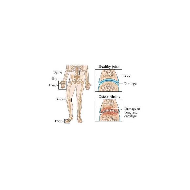 proprietățile farmacologice ale glucozaminei și condroitinei