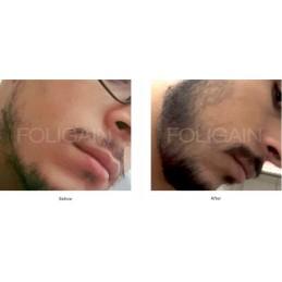 Foligain Minoxidil 5% Tratament regenerare par barbati
