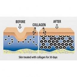 Colagen Hidrolizat, Tip 1 si 3, 120 Capsule, prospect, efecte, beneficii, pret