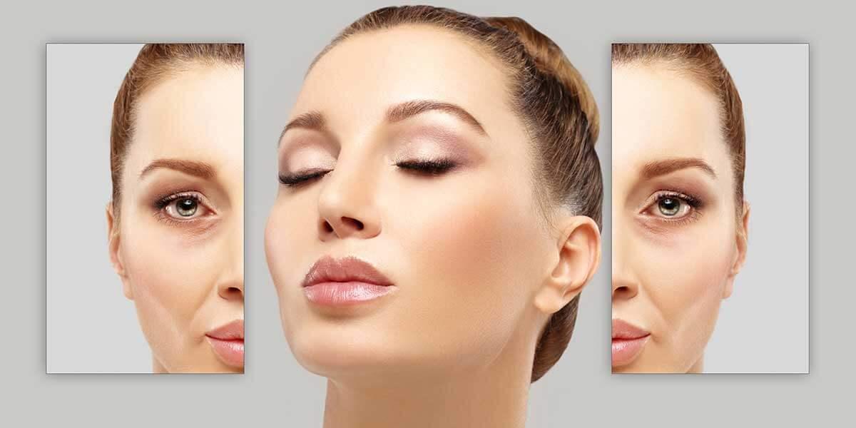 Acid hialuronic umple ridurile, tratament riduri, pret, prospect, beneficii