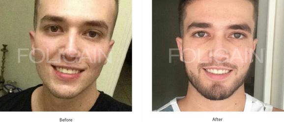 Creste barba solutie tratament