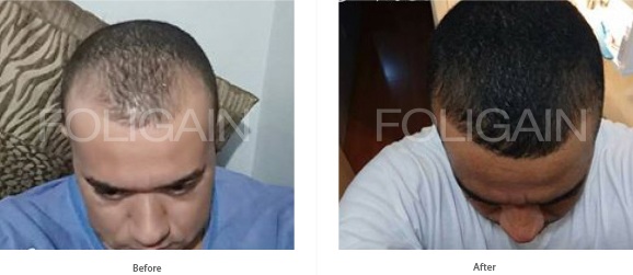Rezultate folosire minoxidil barbati tratament cadere par