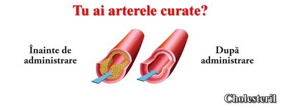 Tratament colesterol si trigliceride drojdie de orez rosu